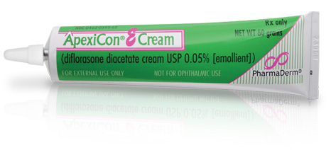corticosteroid creams for psoriasis